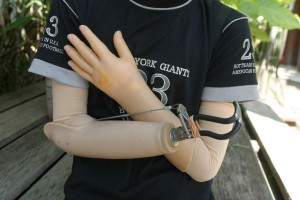 COPE_Clinic_Prosthetic arms